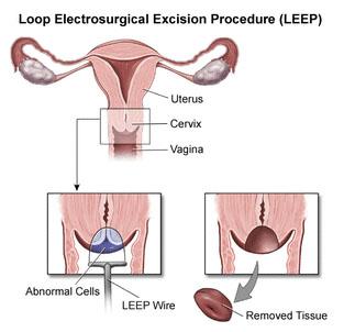 LEEP (Loop Electrosurgical Excision Procedure)