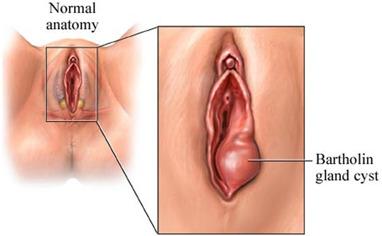 Drainage of Bartholin's glands